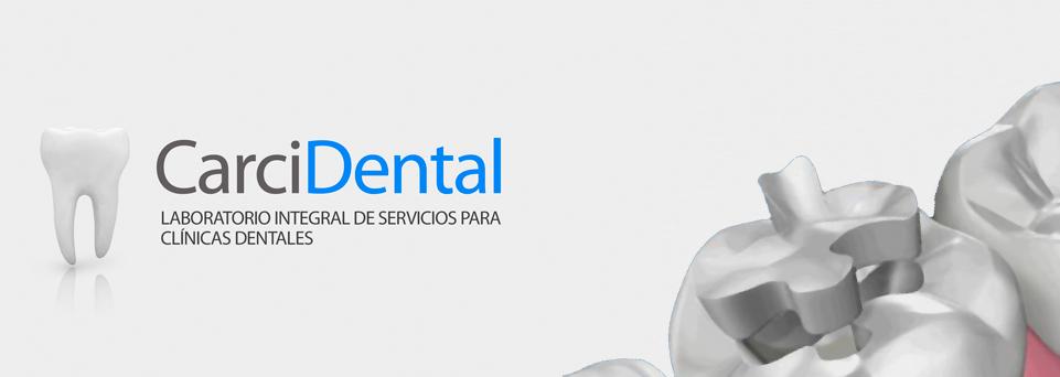 carcidental-incrustaciones dentales