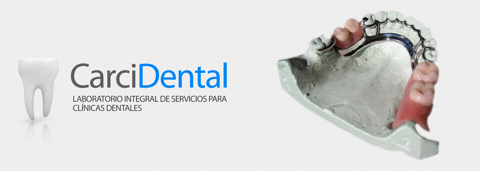 carcidental-prótesis parcial removible